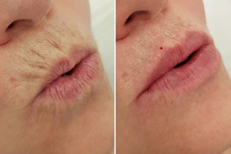 Ботокс губ: фото до и после