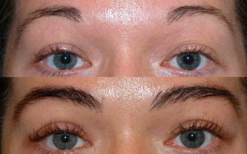 Пересадка бровей: фото до и после