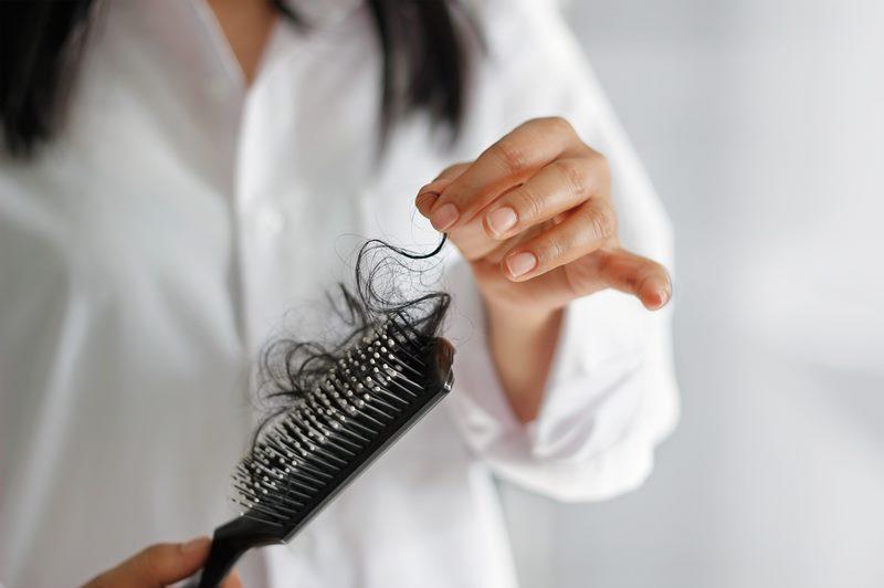 Выпадение волос у женщин: алопеция