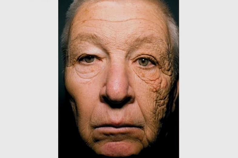 Фотостарение кожи на примере мужчины