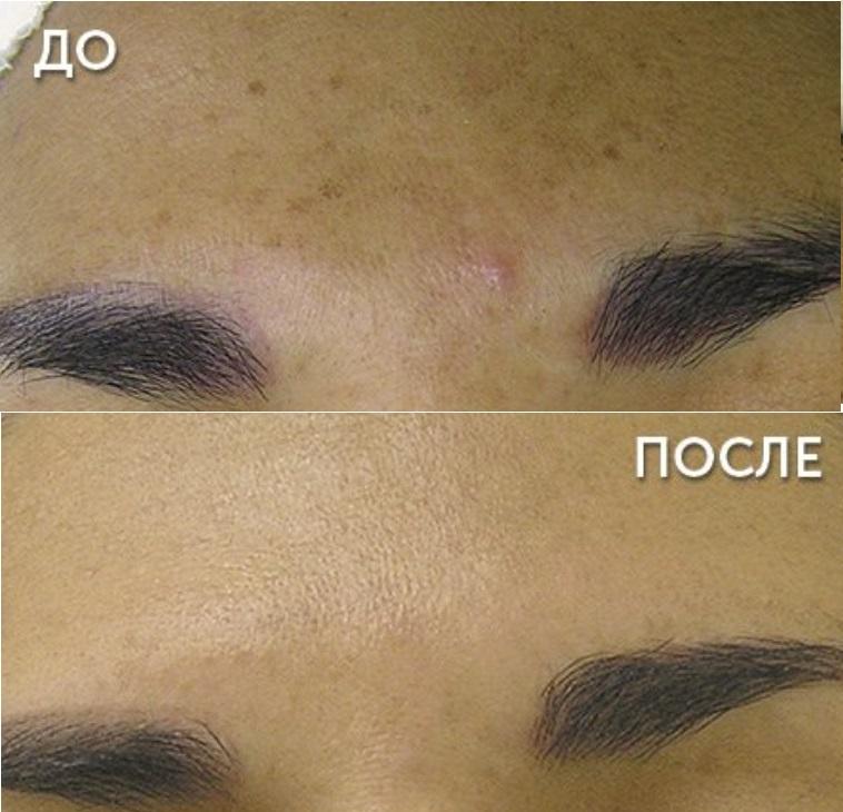 Процедура HydraFacial: фото до и после